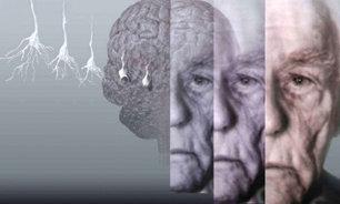 پیری مغز