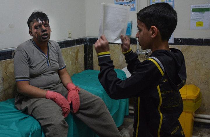 مصدومیت مامور ناجا در چهارشنبه سوری  عکس