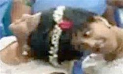 دوقلوهای 14 ساله به همچسبیده ای که تمام عمر در بیمارستان زندگی کردند+تصاویر/شاهزاده عربستانی اعدام شد