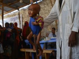 یک کودک بیمار مشکوک به مالاریا در یک مرکز امداد رسانی به کودکان آواره در سومالی
