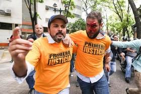 زخمی شدن کی از رهبران ائتلاف مخالفان در ونزوئیلا در تظاهرات مخالفان در کاراکاس