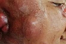 تومور صورت که زنی را کور می کند