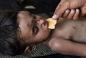 عکس های دردناک از کودکی که داعشی ها زیر آوار جا گذاشتند