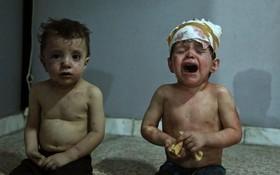 کودکان مجروح سوری در بیمارستان