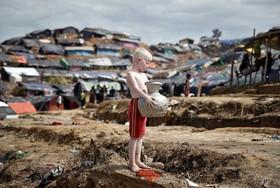 کودک زال روهینگیا در اردوگاهی در بنگلادش