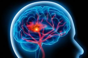 سکته مغزی قابل درمان است، اگر...