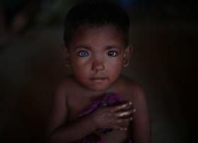 کودک آواره روهینگیا در اردوگاه آوارگان در بنگلادش با جشم های دورنگ