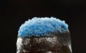 تصویری از کله بازیکن تیم چلسی در بازی با منچستریونایتد تیمو باکایو