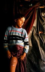 یک نوجوان آواره روهیگیا که محل زخم های ناشی از شلیک ارتش میانمار را نشان می دهد