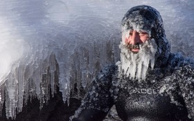 موج سواری در زمستان در  میشیگان چهره این موج سوار را به این شکل در آورده است