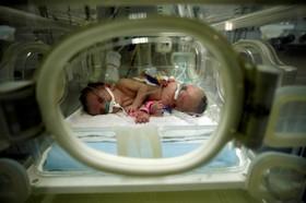 نوزادان بهم چسبیده که در بیمارستانی در غزه فلسطین متولد شده اند