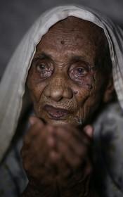 زنی 120 ساله روهینگیایی در بیمارستانی که ترکیه در بنگلادش برای کمک به آوارگان ساخته درمان می شود