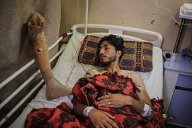 یکی از جوانان فلسطینی زخمی شده در تظاهرات اخیر علیه اشغالگران در بیمارستان به پای مصنوعی  جایگزین پای خود که در تیراندازی اشغالگران از دست داده می نگرد