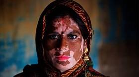 خبر خوش برای مبتلایان به بیماری ویتیلیگو