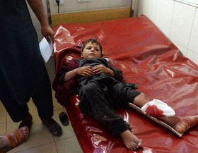 کودک زخمی پس از انفجار در جلالآباد افغانستان