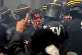 یک معترض مصدوم در تظاهرات اتحادیههای کارگری فرانسه علیه سیاستهای اقتصادی امانوئل ماکرون رییس جمهوری فرانسه