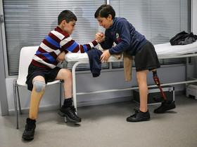 """""""مُچ انداختن"""" دو نوجوان مهاجر سوری که هردو، یک پایشان را در جنگ داخلی سوریه از دست دادهاند. بیمارستان خصوصی جراحیهای پروتزی """"کویت"""" در شهر استانبول ترکیه"""