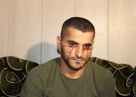 اشک های خونین محمود؛ اوخون گریه میکند+تصاویر