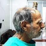 مردی که روی سرش شاخ دارد! +تصاویر