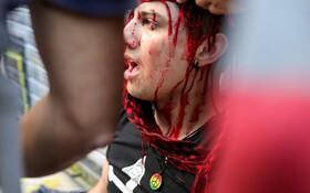 (تصاویر) امدادرسانی به تظاهرکننده ای زخمی در سانتیاگوی شیلی