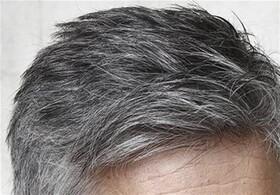 فشار عصبی علت سفید شدن موی سر