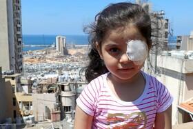 کودکی که بینایی یک چشمش را در انفجار بیروت از دست داده